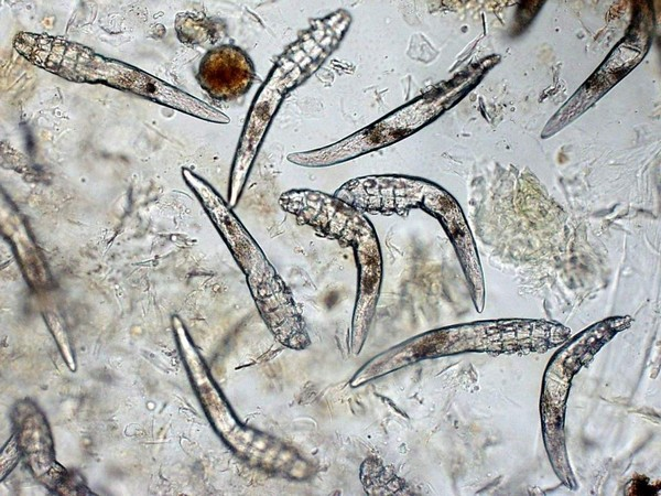 Микроскопический клещ demodex