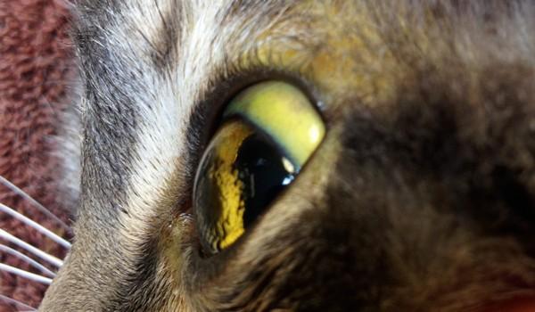 Желтизна глаз