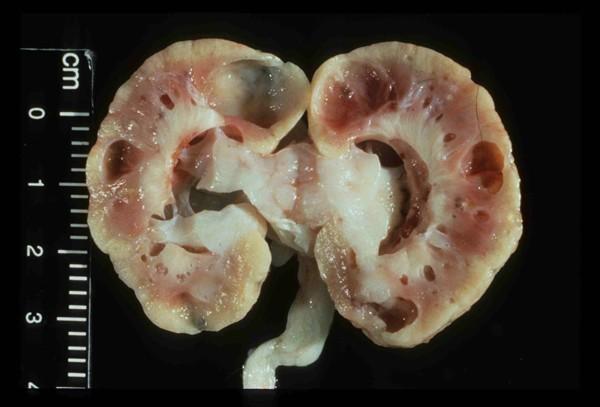 Почки, пораженные пиелонефритом